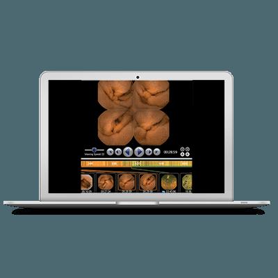 Rapid viewer a Pillcam kapszula endoszkópia alatt biztosítja a valós idejű megfigyelést